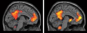 Daniel Schacter Functional MRI Scans